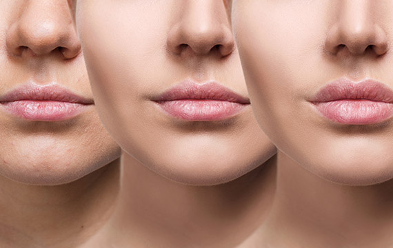 Lip Fillers in Hull | Botastic MediSpa - A discreet lip